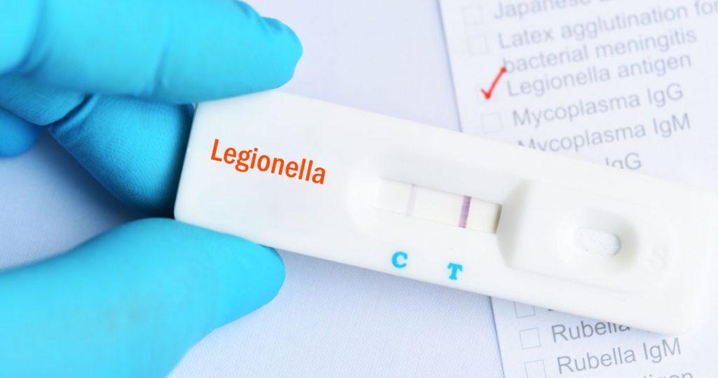 Test della Legionella
